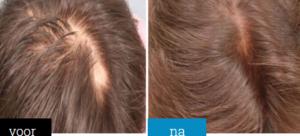 Premium Hair Grow+ - werkt niet - apotheek - radar